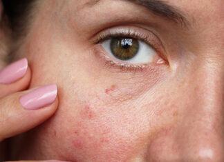 Zaczerwienienia na twarzy – z czego wynikają